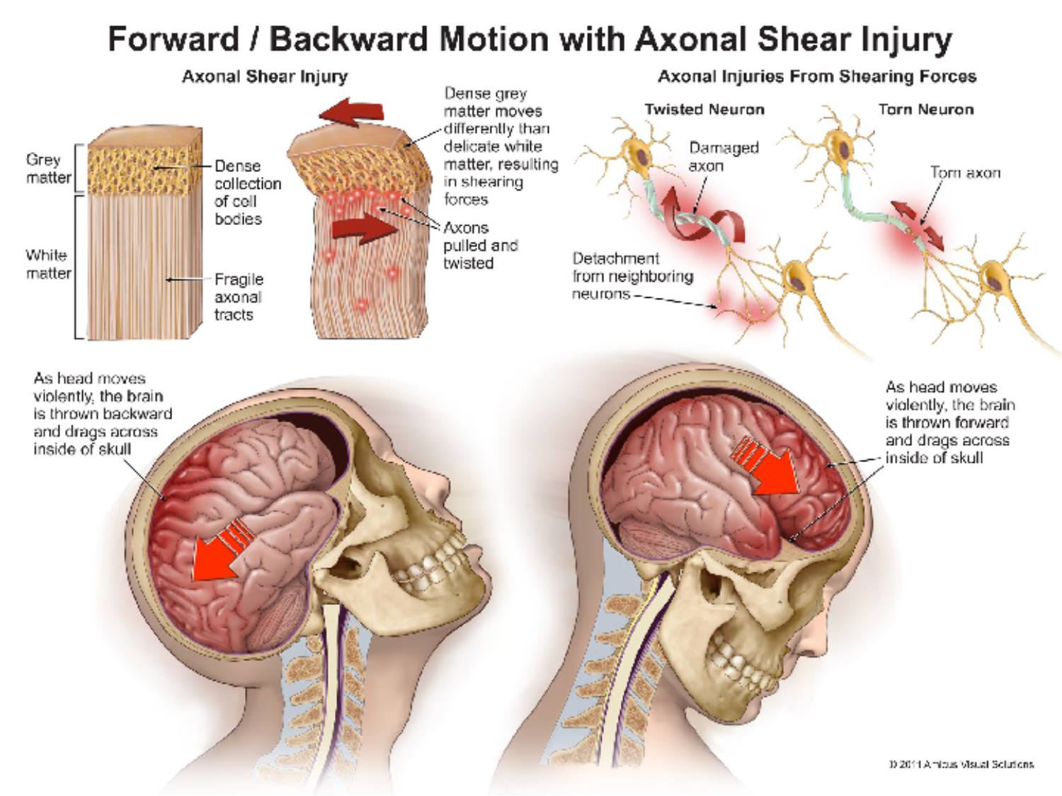 image of axonal shear injury used in a trial