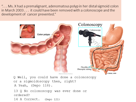 image of a colonoscopy and some medical language